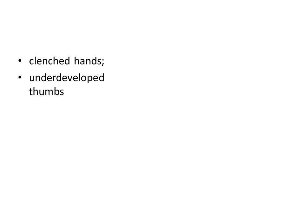 clenched hands; underdeveloped thumbs