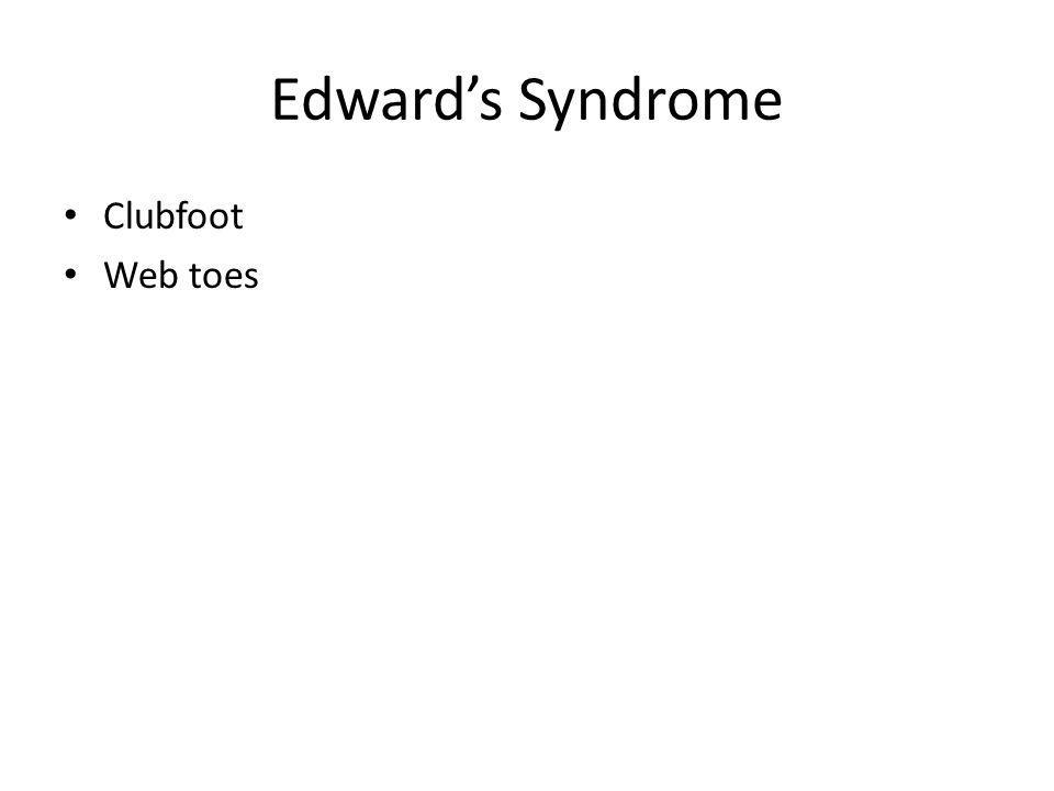 Edwards Syndrome Clubfoot Web toes