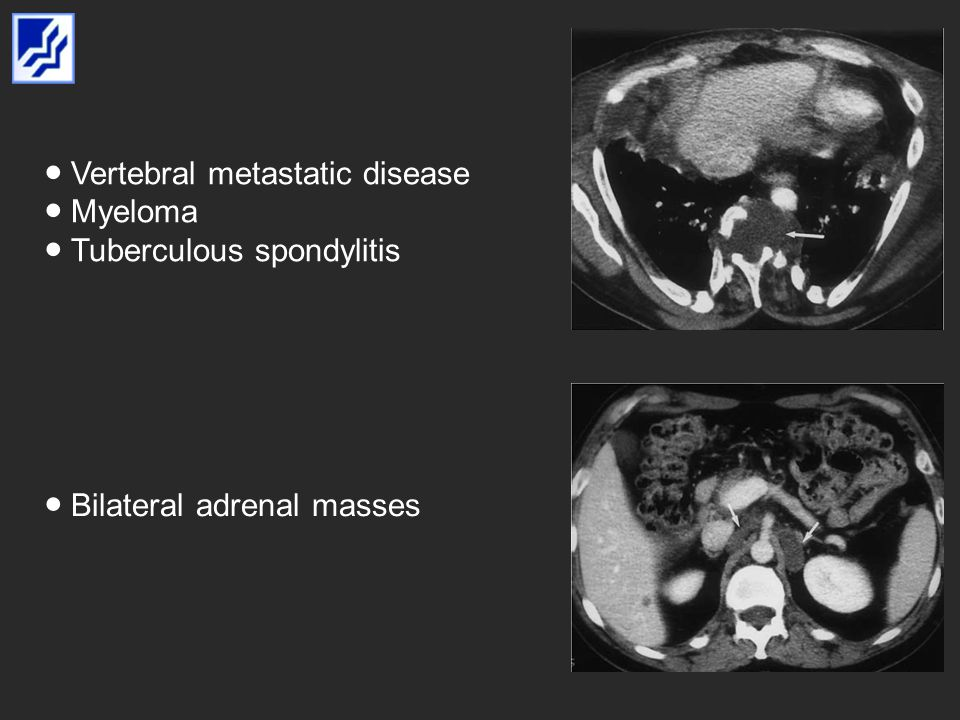 Vertebral metastatic disease Myeloma Tuberculous spondylitis Bilateral adrenal masses
