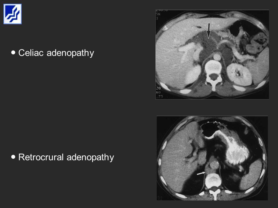 Celiac adenopathy Retrocrural adenopathy