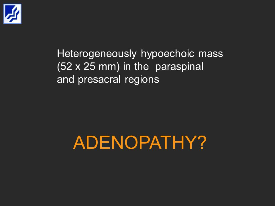 Heterogeneously hypoechoic mass (52 x 25 mm) in the paraspinal and presacral regions ADENOPATHY