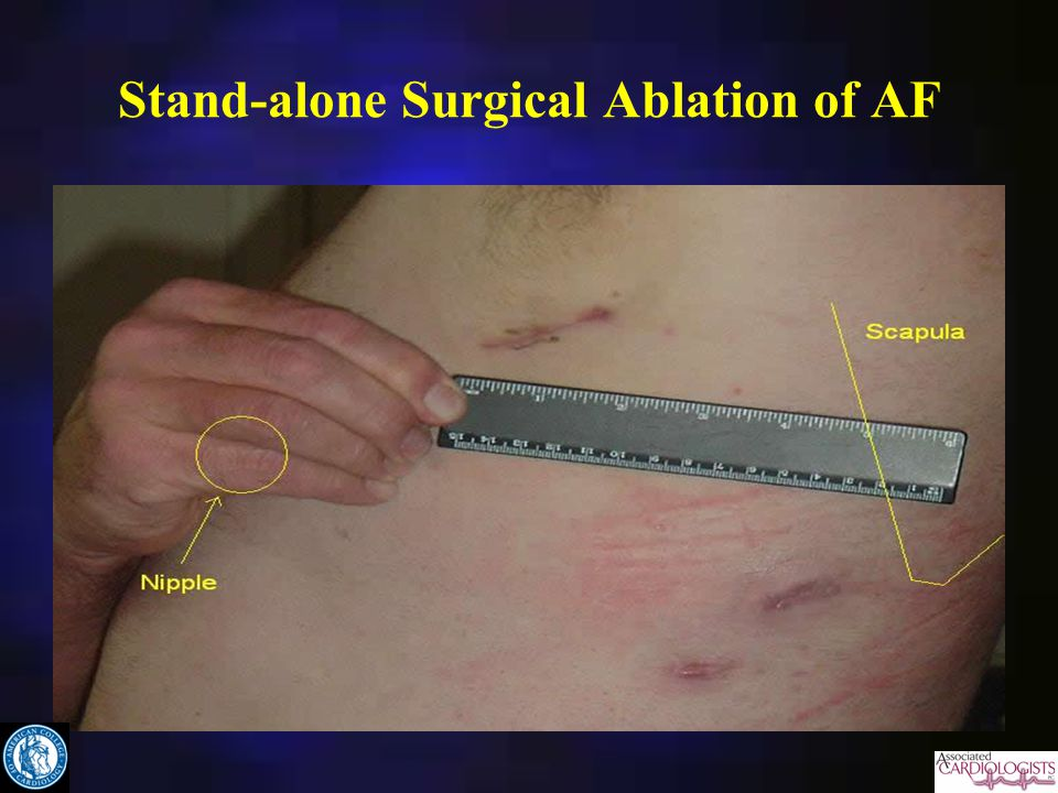 Stand-alone Surgical Ablation of AF