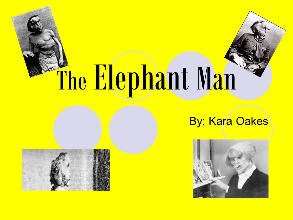 The Elephant Man By: Kara Oakes