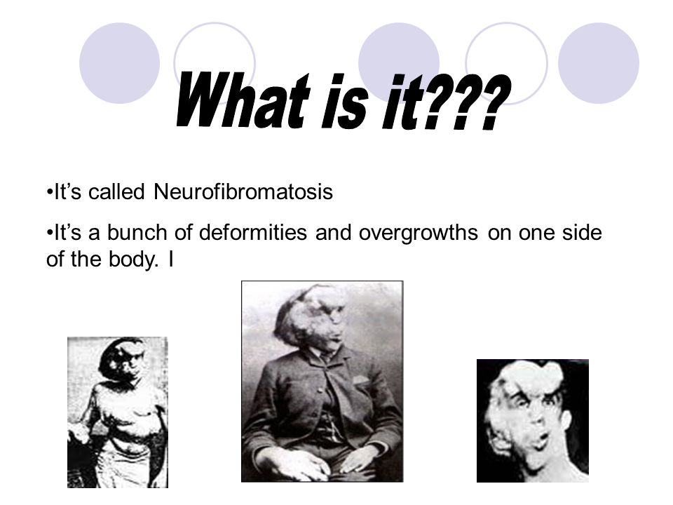 Its called Neurofibromatosis Its a bunch of deformities and overgrowths on one side of the body. I