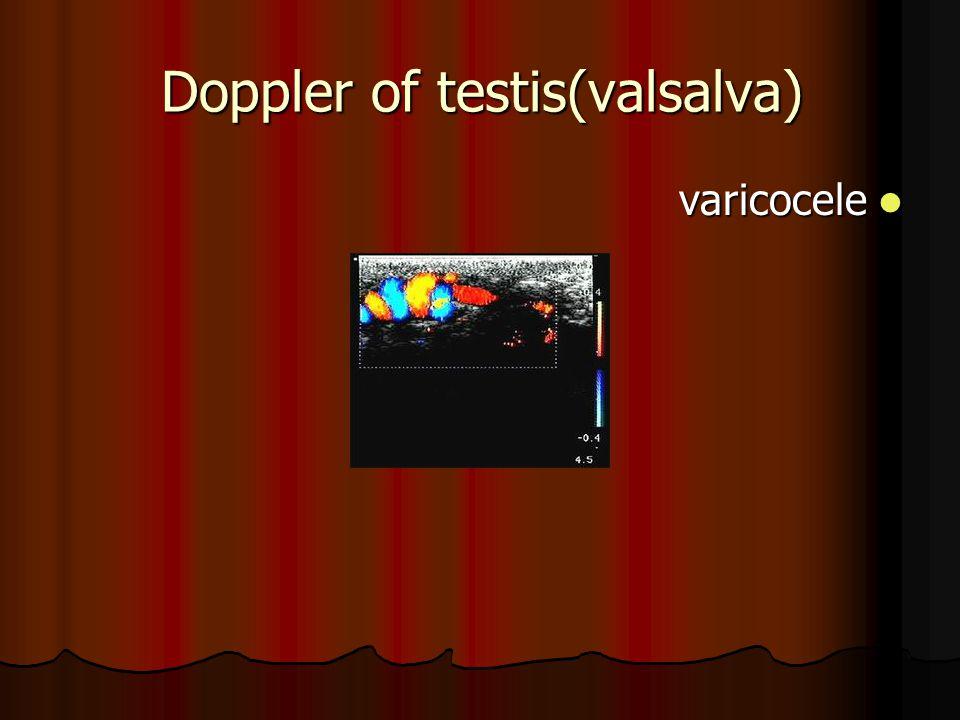 Doppler of testis(valsalva) varicocele varicocele