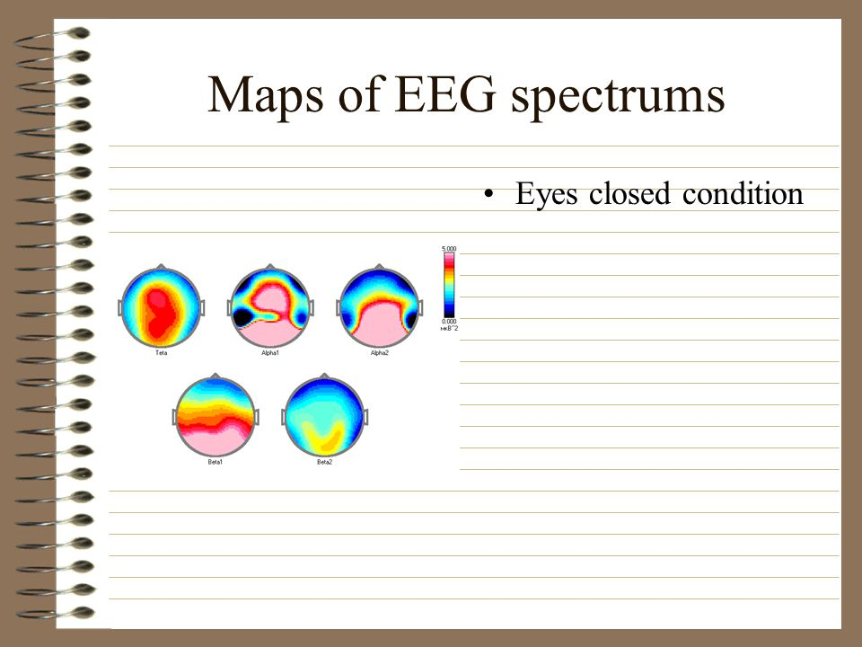 Maps of EEG spectrums Eyes closed condition