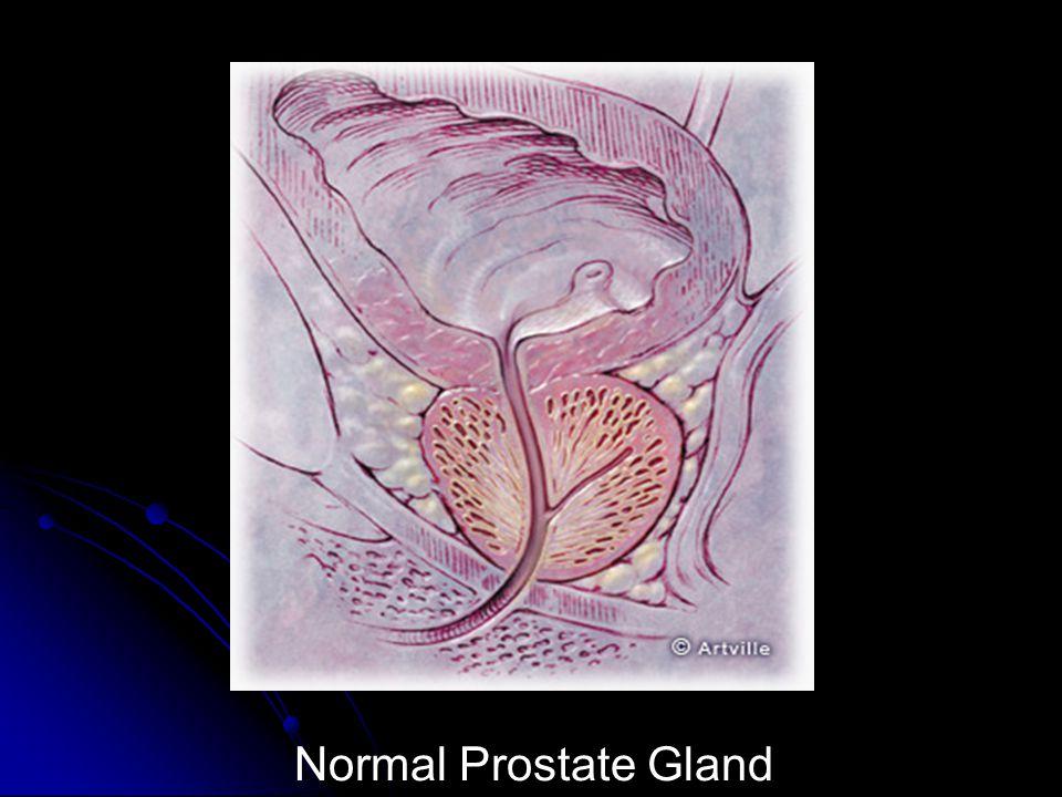 Normal Prostate Gland