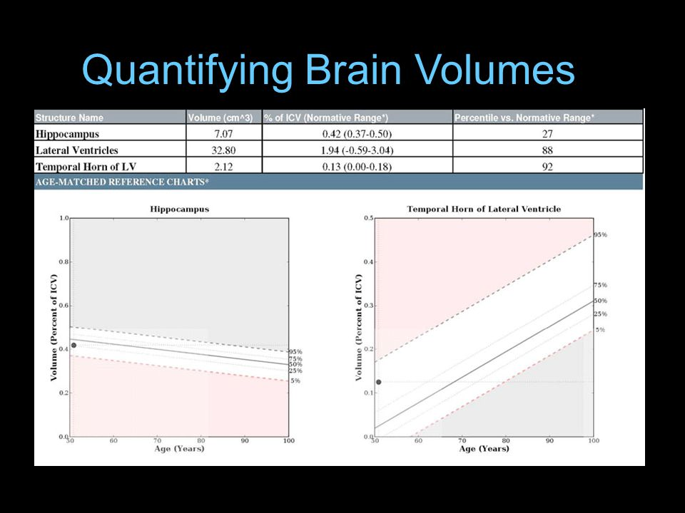 Quantifying Brain Volumes