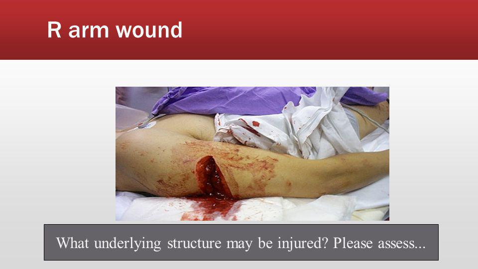 What other underlying structures may be injured? How to assess?