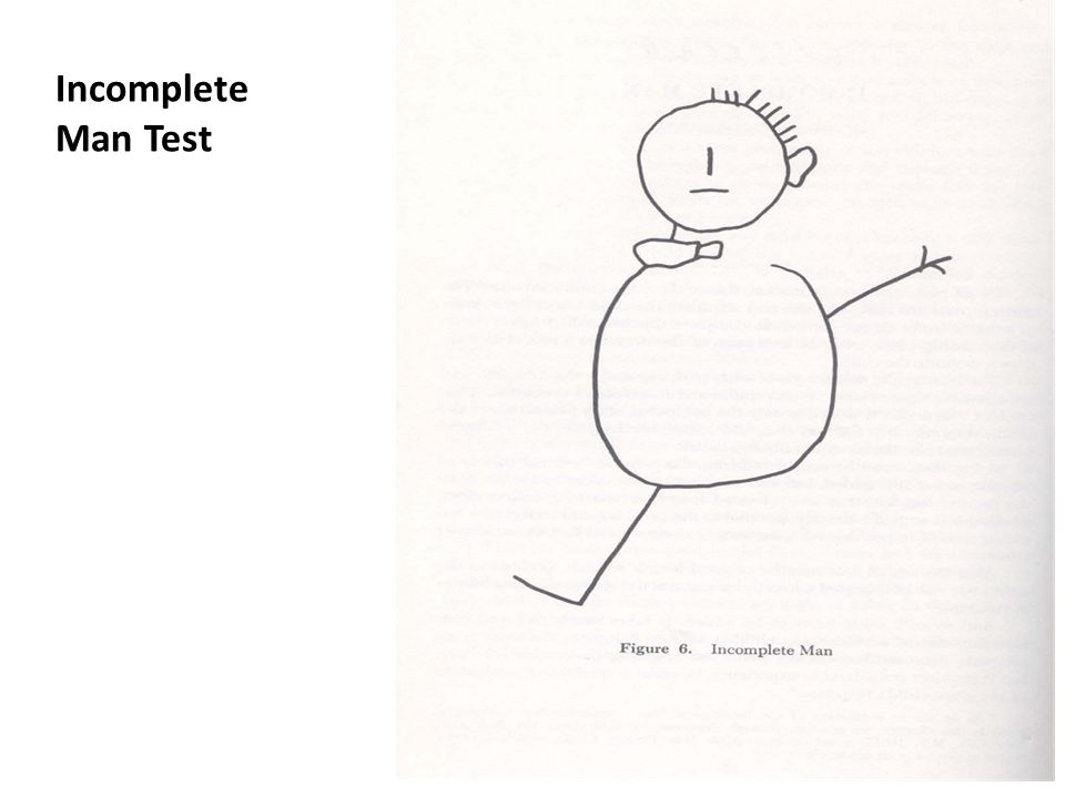 Procedure continued Rating system: – After completing the test, the childs responses will be recorded verbatim at the bottom of the test page in the space under the heading: Incomplete Man.