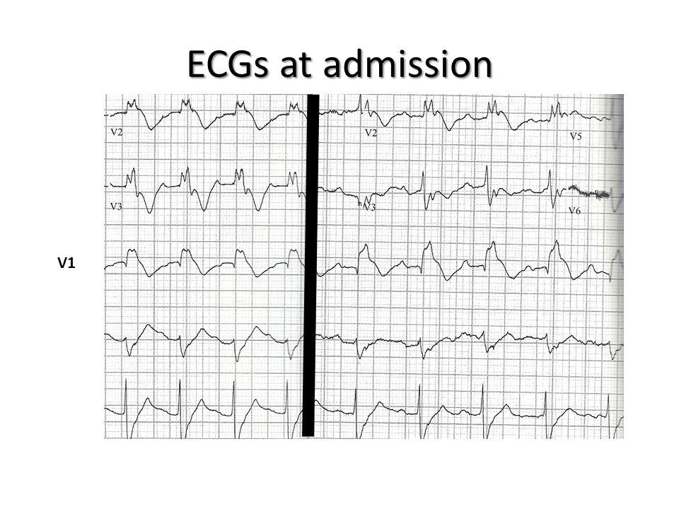 ECGs at admission V1