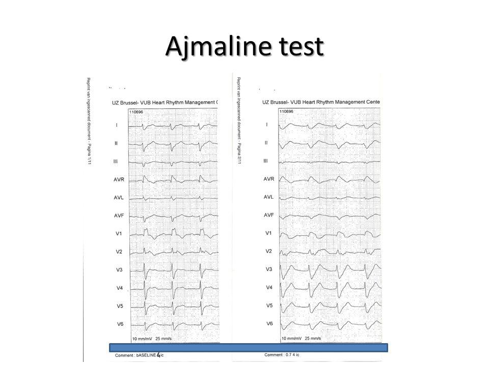 Ajmaline test