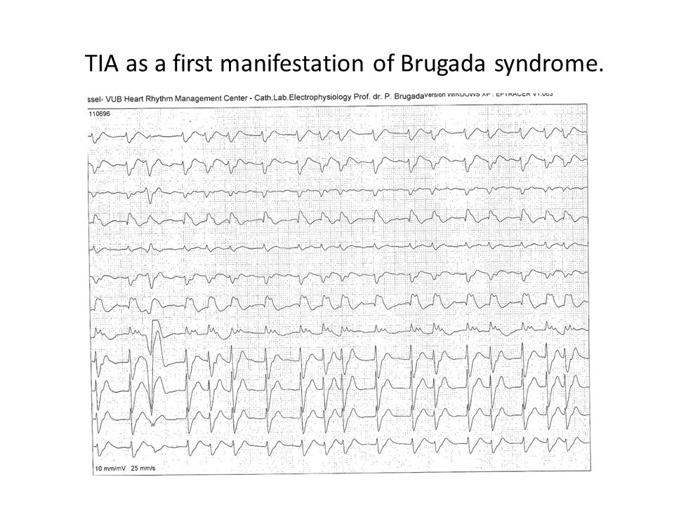 TIA as a first manifestation of Brugada syndrome.