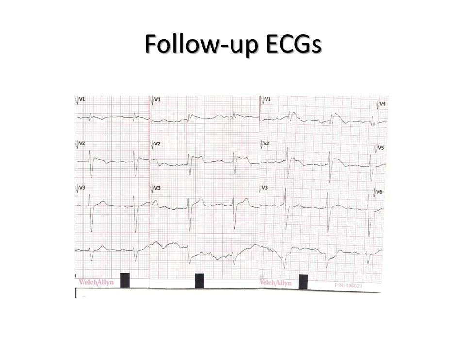 Follow-up ECGs