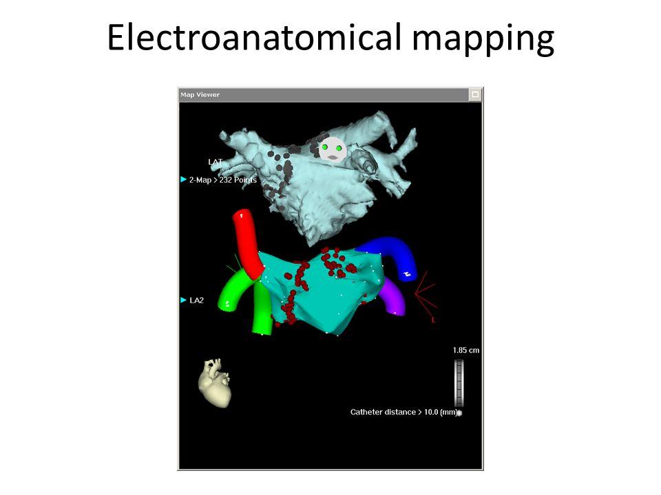 Electroanatomical mapping