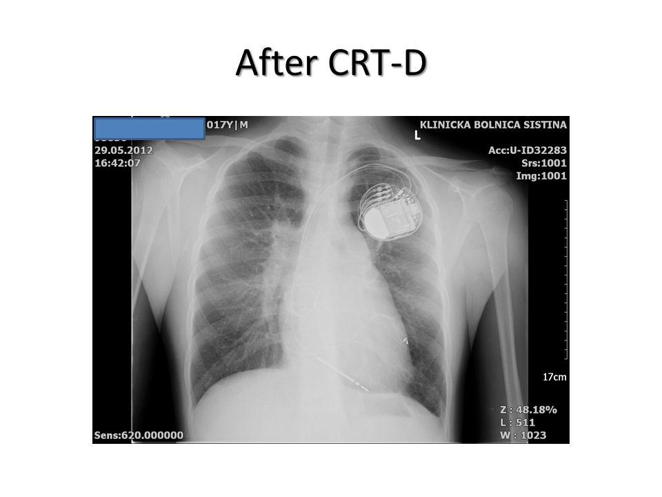 After CRT-D