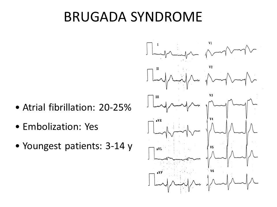 Spontaneous atrial arrhythmias Paroxysmal atrial fibrillation or SSS may be the first manifestation of Brugada syndrome: AJMALINE TEST.