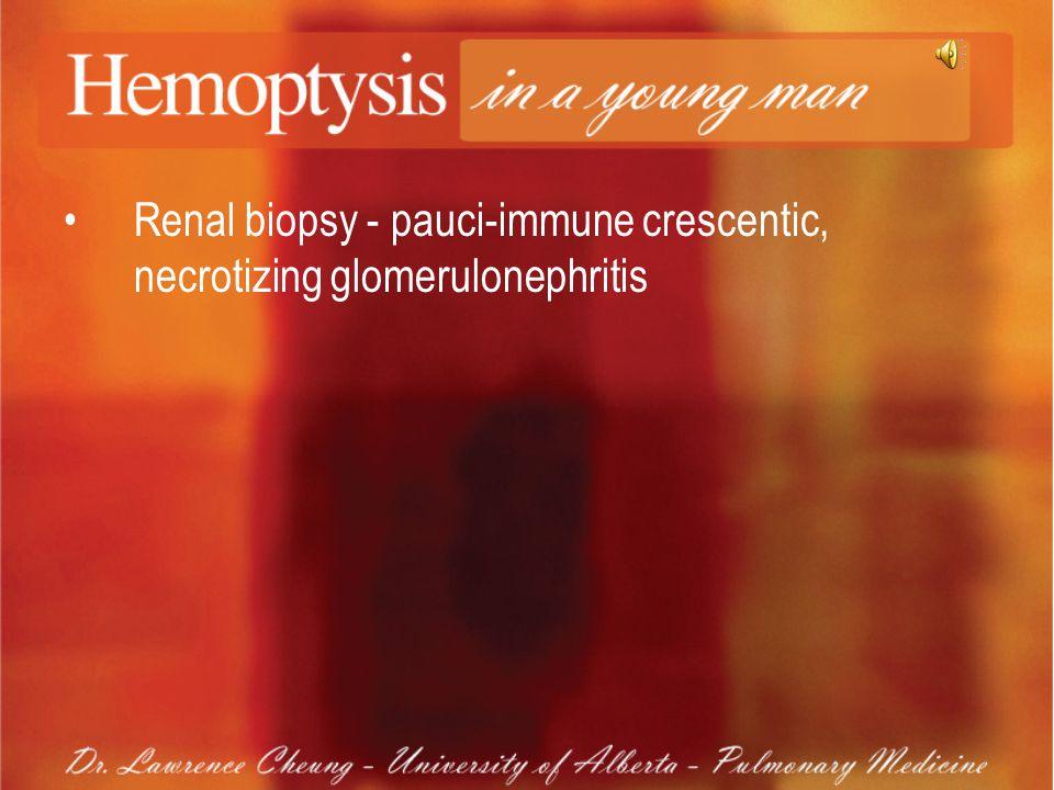 Renal biopsy - pauci-immune crescentic, necrotizing glomerulonephritis