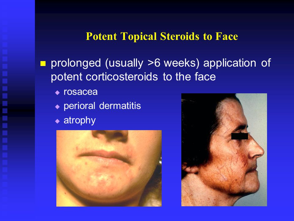 Potent Topical Steroids to Face prolonged (usually >6 weeks) application of potent corticosteroids to the face rosacea perioral dermatitis atrophy