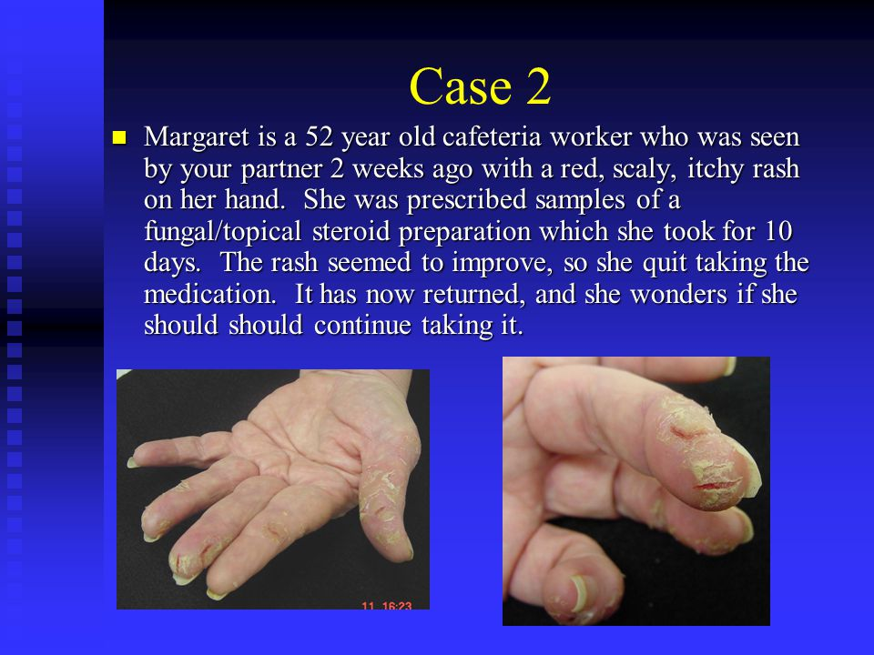 Case 2 Margaret is a 52 year old cafeteria worker who was seen by your partner 2 weeks ago with a red, scaly, itchy rash on her hand. She was prescrib