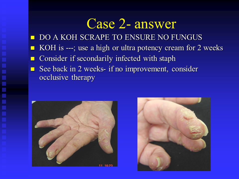 Case 2- answer DO A KOH SCRAPE TO ENSURE NO FUNGUS DO A KOH SCRAPE TO ENSURE NO FUNGUS KOH is ---; use a high or ultra potency cream for 2 weeks KOH i