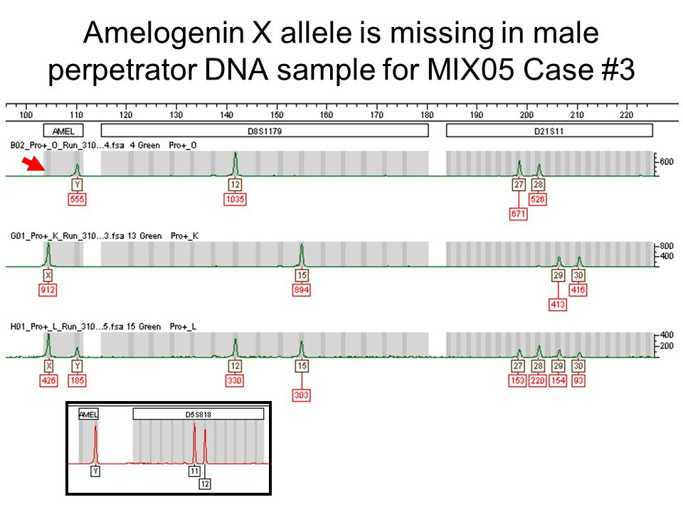 Amelogenin X allele is missing in male perpetrator DNA sample for MIX05 Case #3