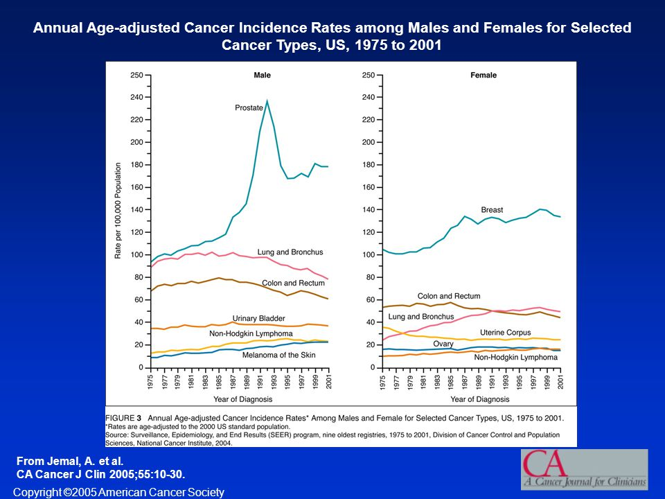 Copyright ©2005 American Cancer Society From Jemal, A. et al. CA Cancer J Clin 2005;55:10-30. Annual Age-adjusted Cancer Incidence Rates among Males a