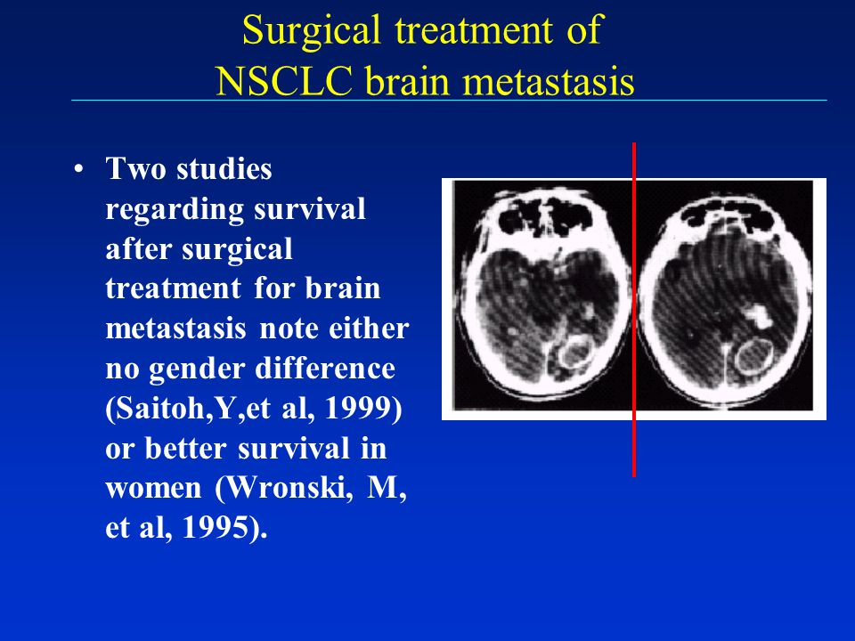 Surgical treatment of NSCLC brain metastasis Two studies regarding survival after surgical treatment for brain metastasis note either no gender differ