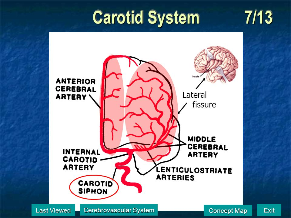 Carotid System6/13 Last Viewed Last Viewed Cerebrovascular System Cerebrovascular System Exit Concept Map Concept Map