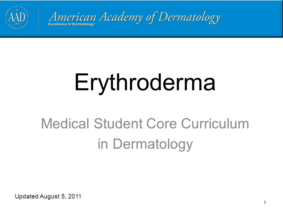 Erythroderma Medical Student Core Curriculum in Dermatology Updated August 5, 2011 1