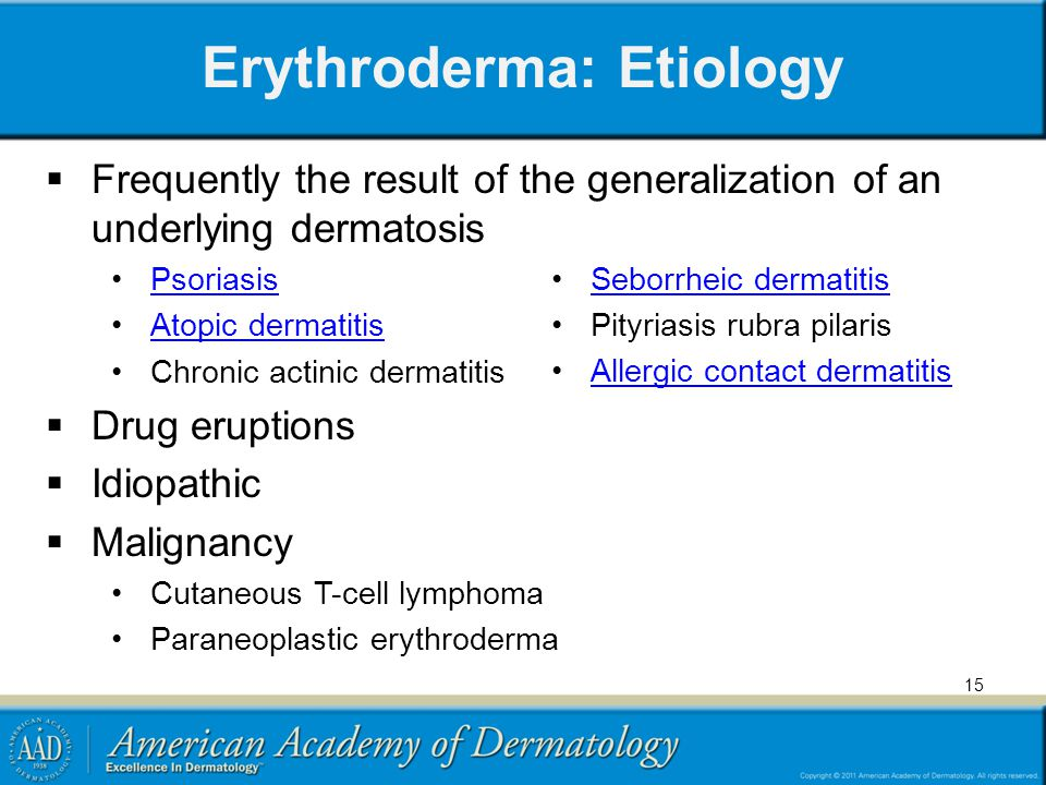 Erythroderma: Etiology Frequently the result of the generalization of an underlying dermatosis Psoriasis Atopic dermatitis Chronic actinic dermatitis