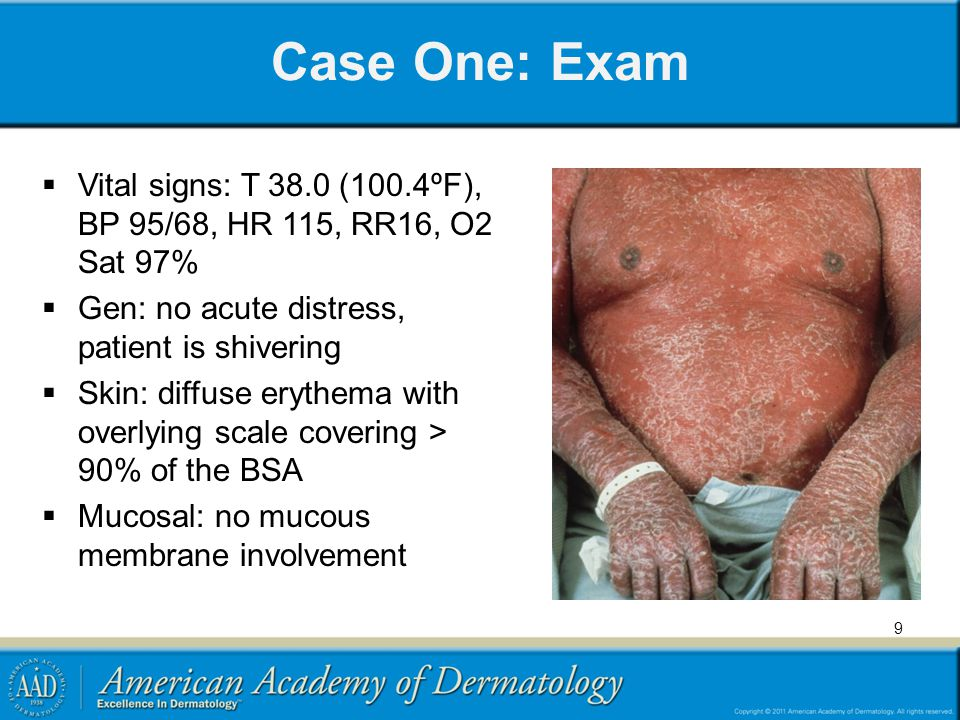 Case One: Exam Vital signs: T 38.0 (100.4ºF), BP 95/68, HR 115, RR16, O2 Sat 97% Gen: no acute distress, patient is shivering Skin: diffuse erythema w