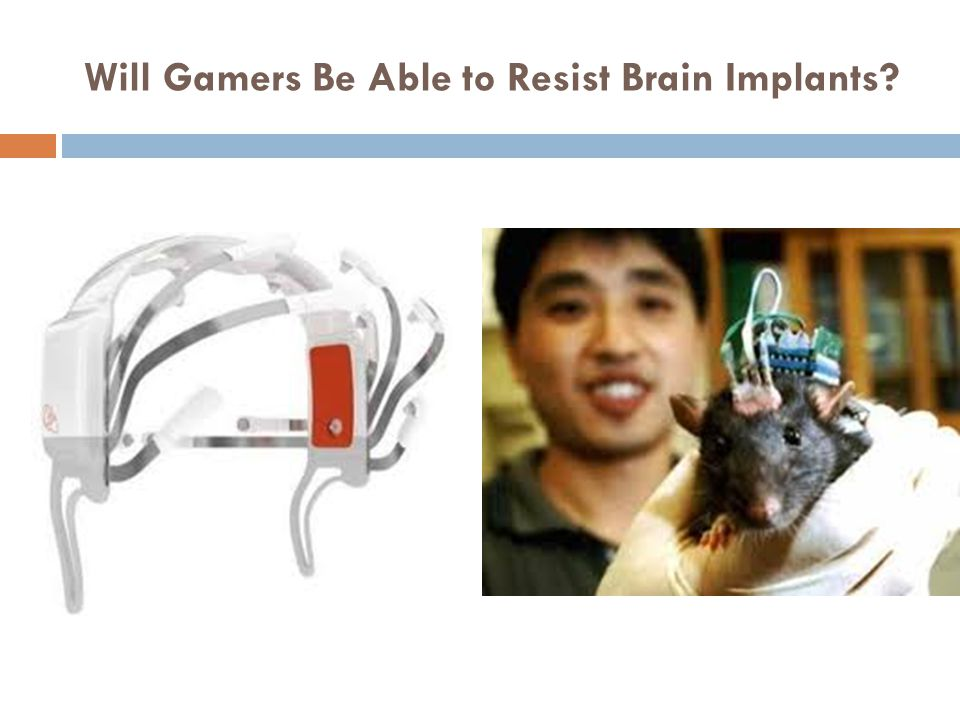 Will Gamers Be Able to Resist Brain Implants?