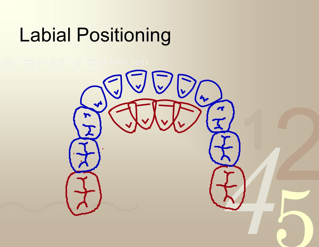 Overcoming Incisor Liability Labial positioning of the permanent incisors –permanent incisors erupt to a more labial position –permanent incisors are