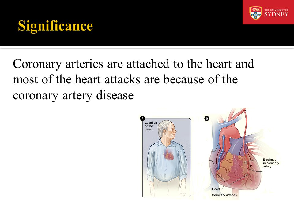 Coronary arteries are attached to the heart and most of the heart attacks are because of the coronary artery disease
