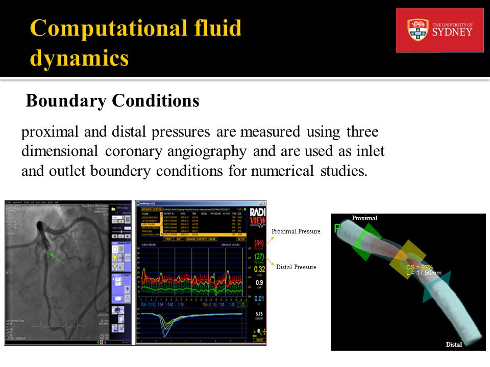 Flow Solver Today a number of commercial CFD codes are available to solve the governing equations, Ansys CFX is one of them.
