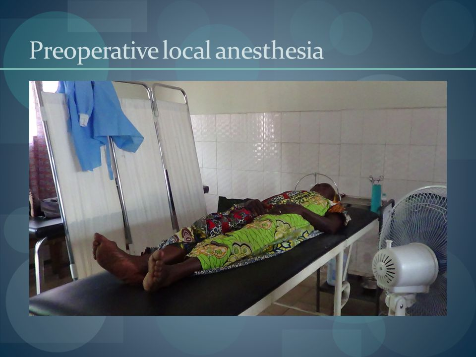 Preoperative local anesthesia