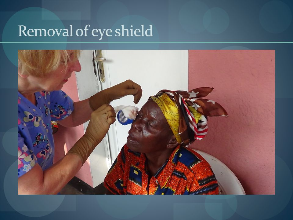 Removal of eye shield