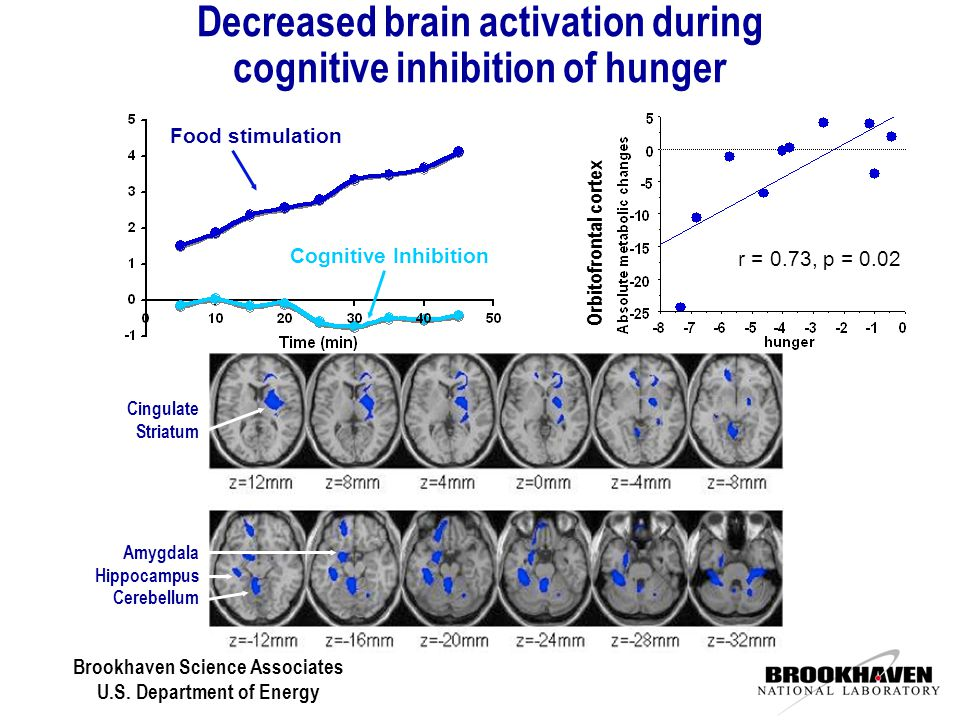 Brookhaven Science Associates U.S. Department of Energy Decreased brain activation during cognitive inhibition of hunger r = 0.73, p = 0.02 Orbitofron