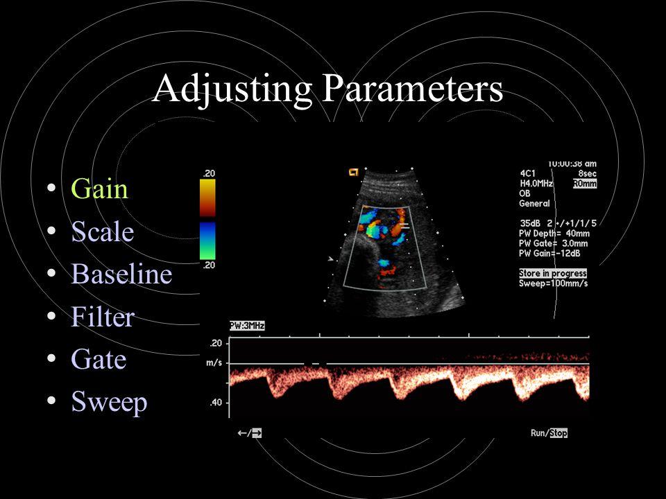Adjusting Parameters Gain Scale Baseline Filter Gate Sweep
