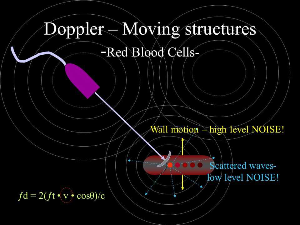 Doppler – Moving structures - Red Blood Cells- Scattered waves- low level NOISE! Wall motion – high level NOISE! ƒd = 2(ƒt v cosθ)/c