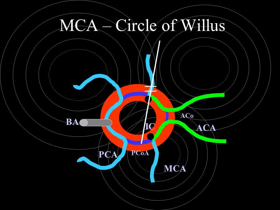 MCA – Circle of Willus ACA ACo MCA PCoA PCA BA IC