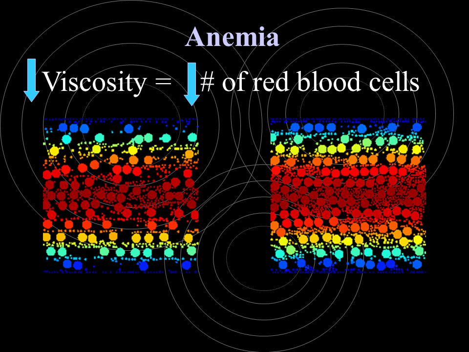 Viscosity = # of red blood cells Anemia