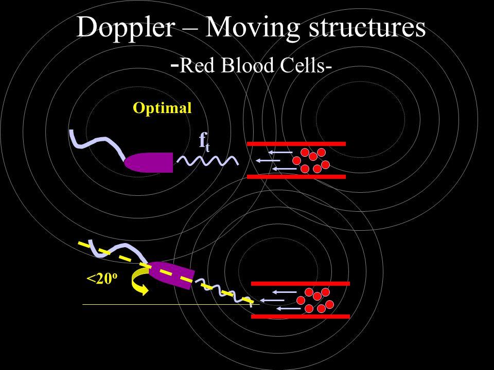 ftft Doppler – Moving structures - Red Blood Cells- <20 o Optimal