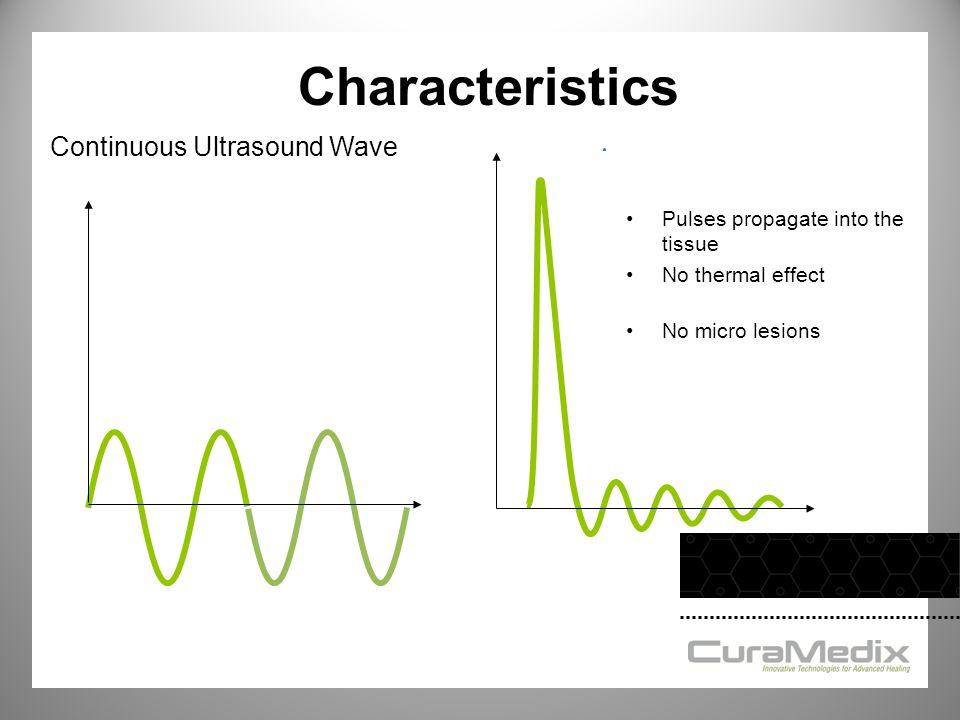 Continuous Ultrasound Wave Pulses propagate into the tissue No thermal effect No micro lesions Characteristics
