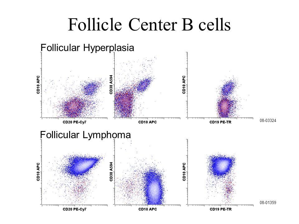 Follicle Center B cells 08-01359 08-03324 Follicular Lymphoma Follicular Hyperplasia