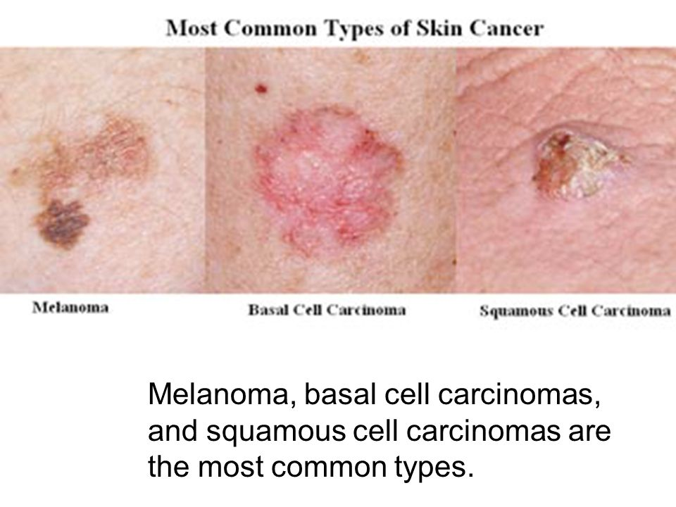 Melanoma, basal cell carcinomas, and squamous cell carcinomas are the most common types.