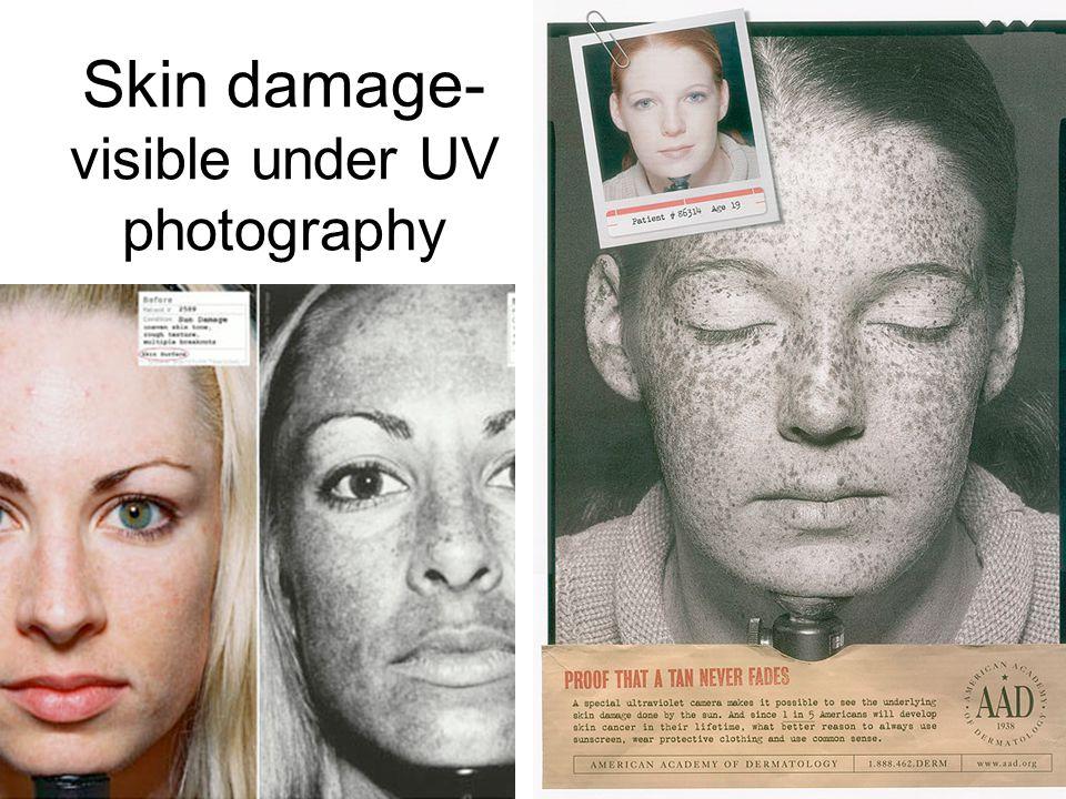 Skin damage- visible under UV photography