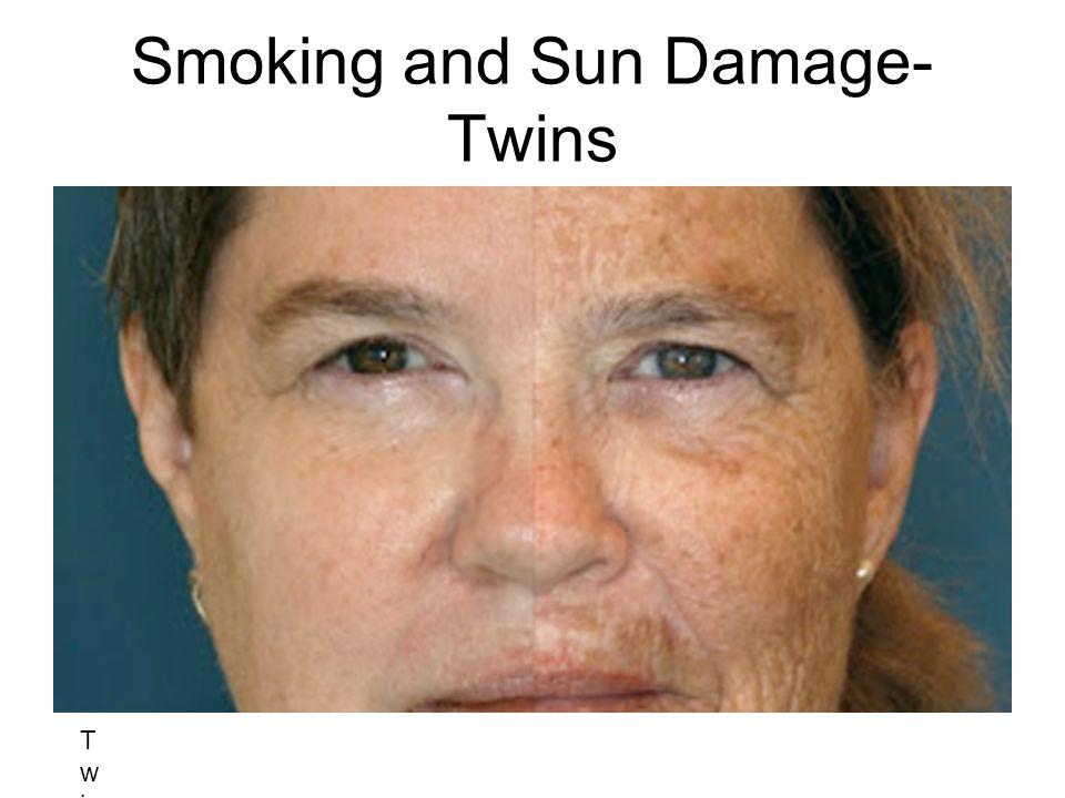 Smoking and Sun Damage- Twins Twin ATwin BTwin ATwin B