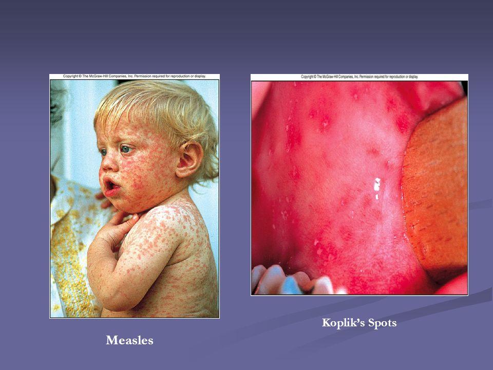 Measles Kopliks Spots